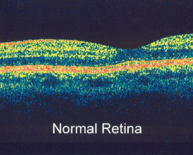 normal-retina Technology